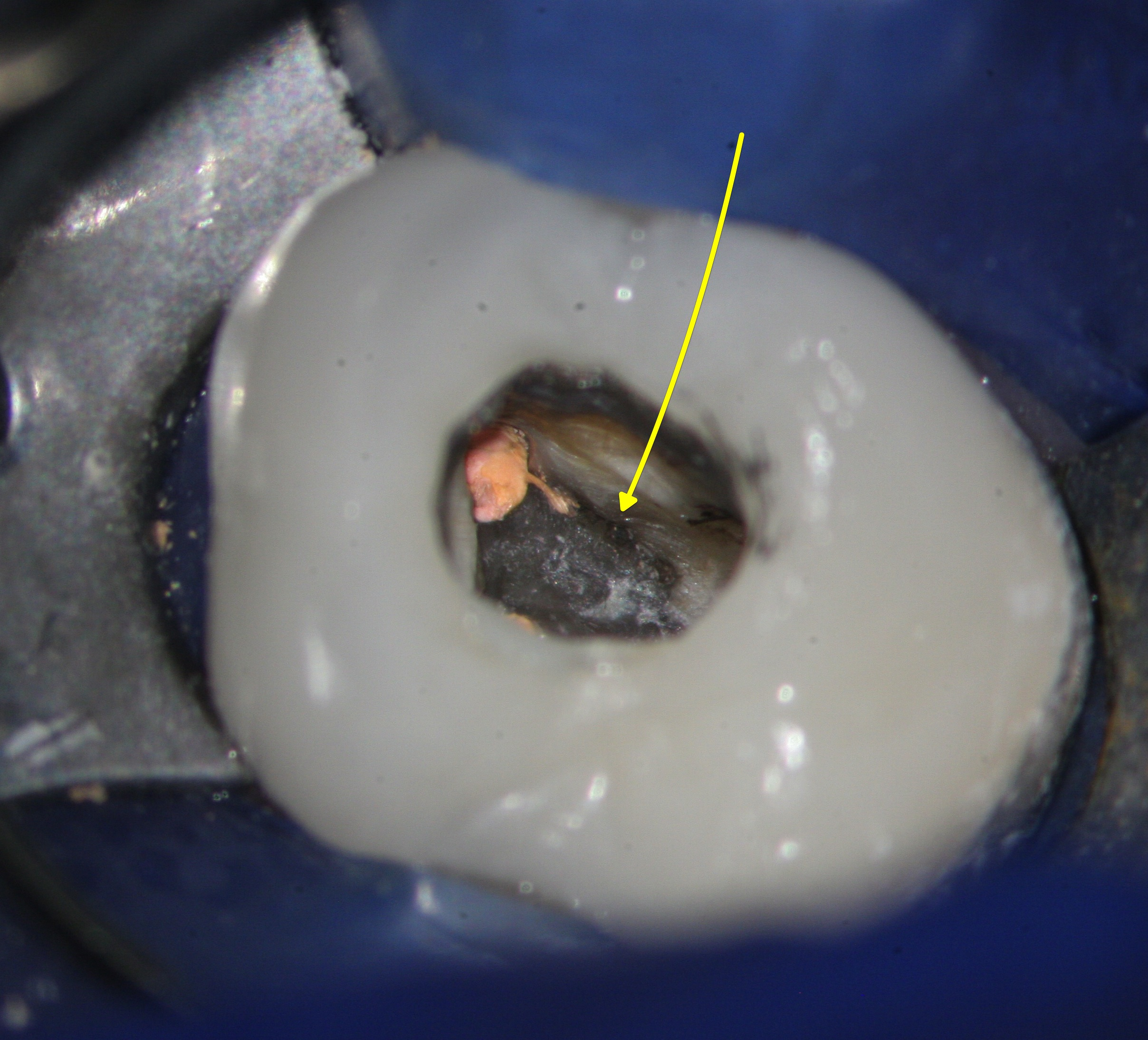 mb2 the missed canal Here you see the mb2 canal not treated in that mb root this tooth does not stand a chance to heal properly either i will tell you this mb2 was hard to find.