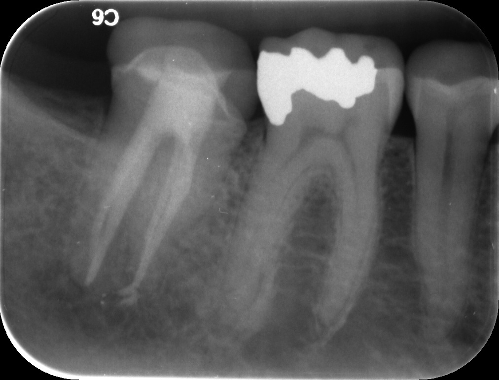 Does Root Canal Treatment Work? | Elm Endodontics Broomfield