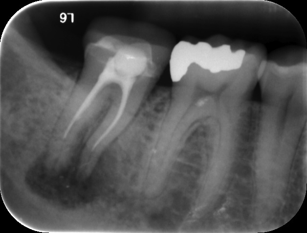 failing root canal with short fill
